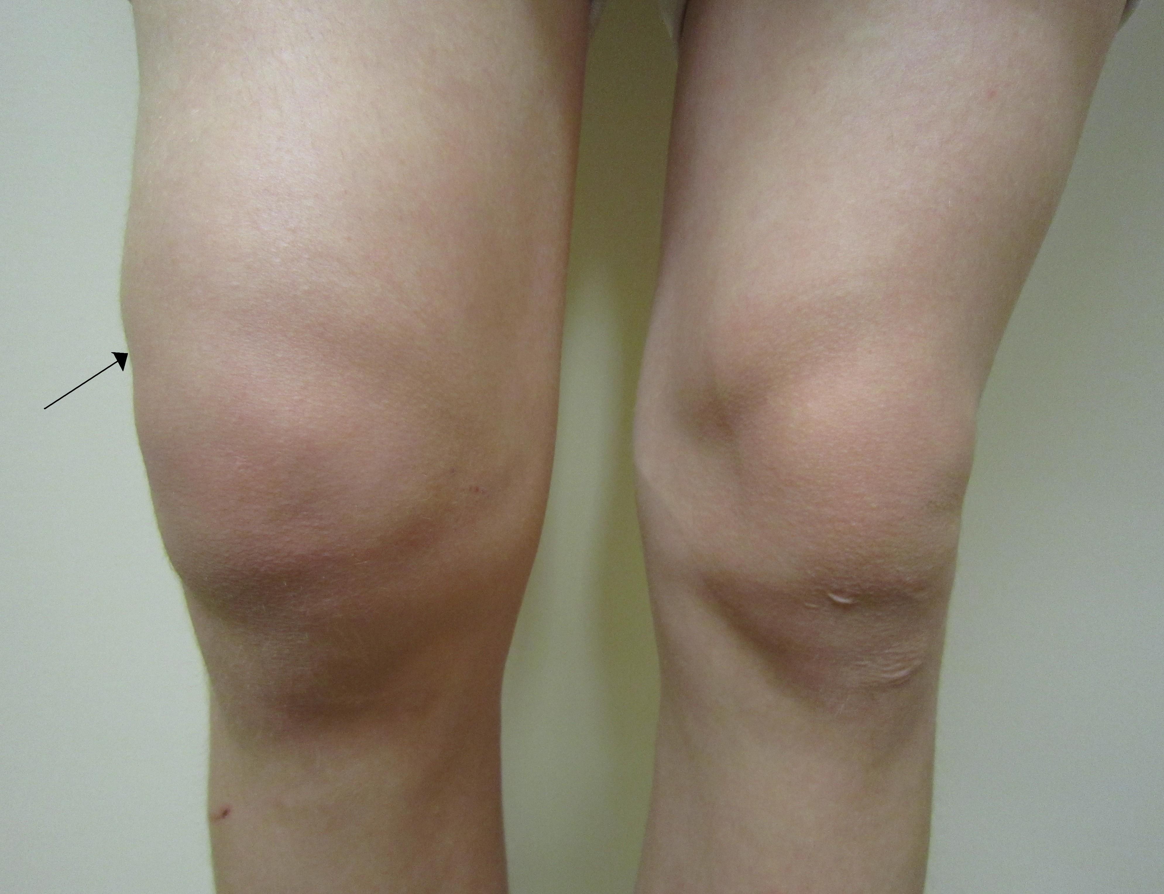 Пухлое колено чем лечить дисплазия суставов у детей