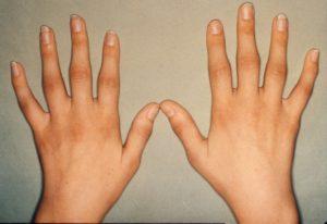 Артрит суставов кистей рук