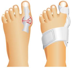 Надетая шина на палец ноги