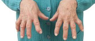 Суставы кистей рук при ревматоидном артрите