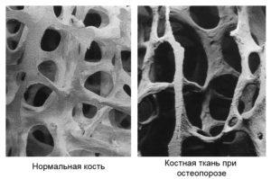 Костная ткань здоровая и при остеопрозе