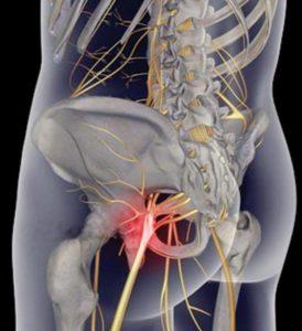 Седалищный нерв в организме человека