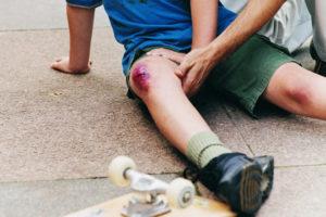Человек ушиб колено