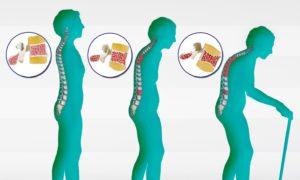Позвоночник здоровый и при остеопорозе
