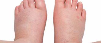 Отёкшие стопы ног