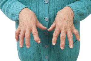 Ульнарная девиация пальцев рук