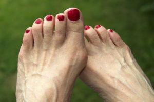 Подагрические шишки на ногах
