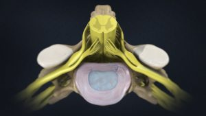 Позвоночник и спинной мозг в разрезе