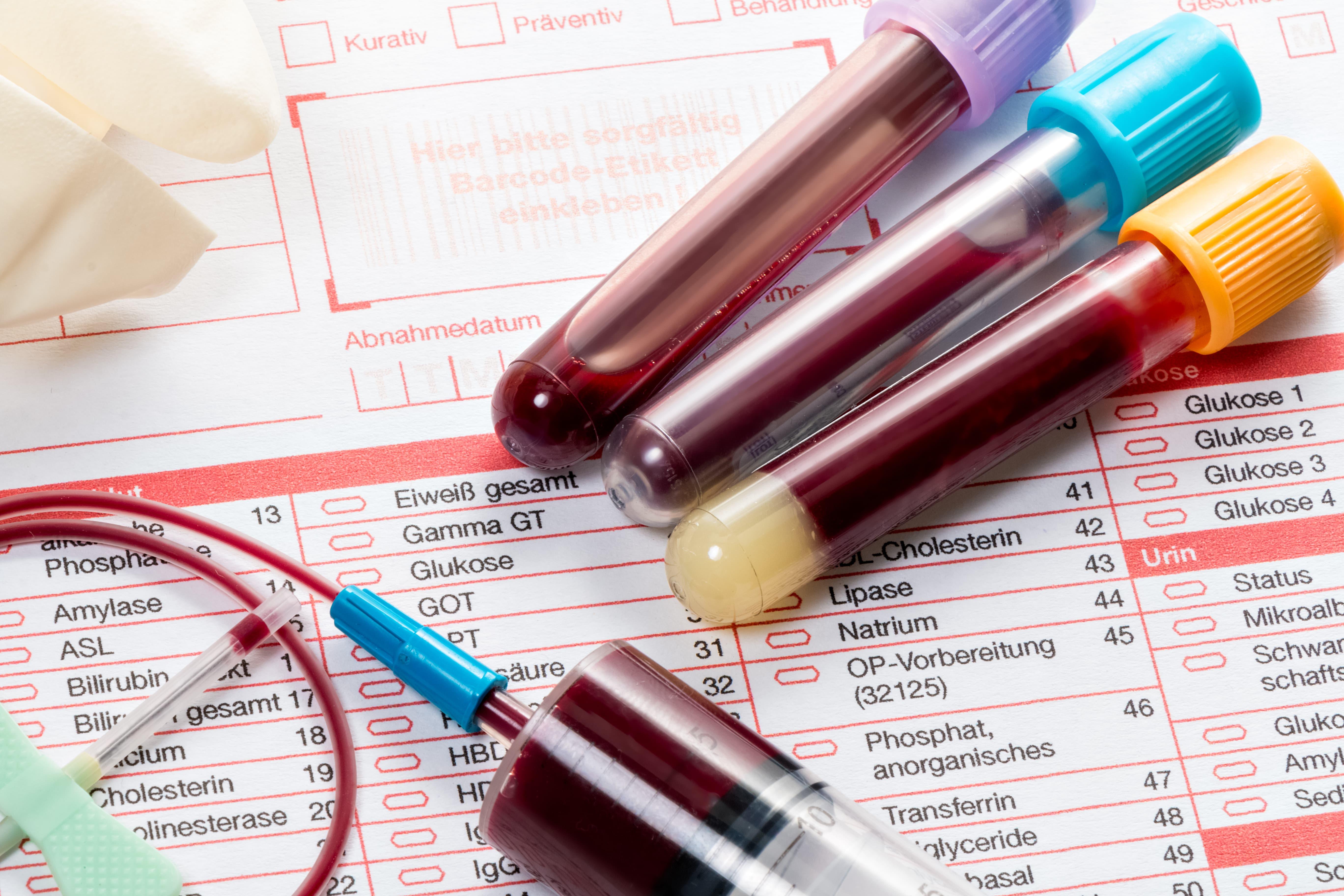 Как сделать анализ крови на наличие витаминов7