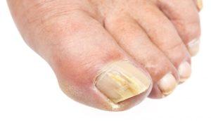 Ноготь большого пальца ноги поражен грибком