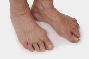 Стопы при ревматоидном артрите