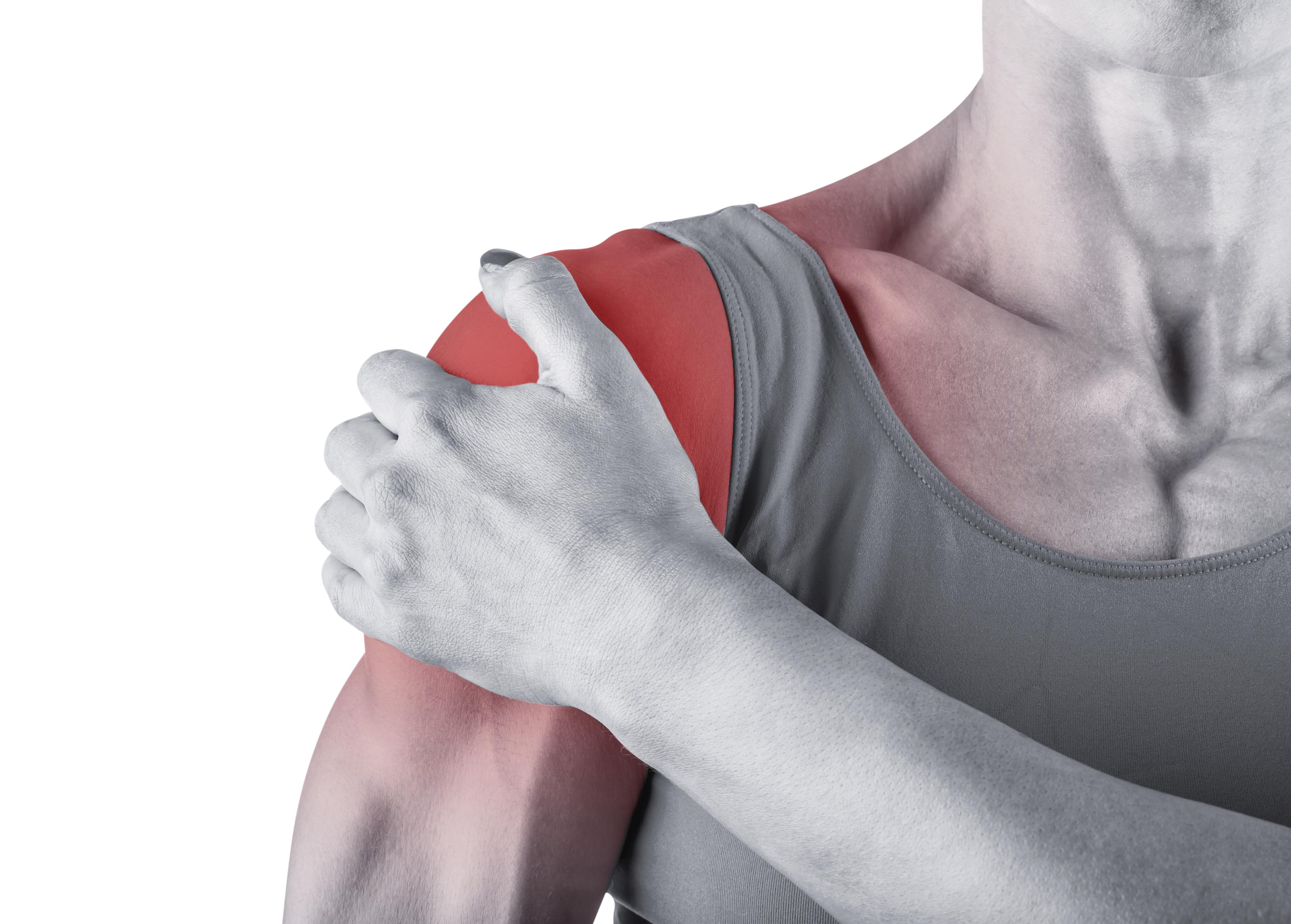 Чем лечить растяжение связок плечевого сустава 16