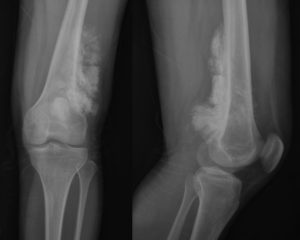 Рентгенограмма костей при саркоме