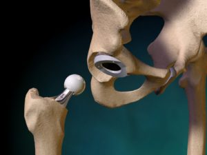 Замененный тазобедренный сустав
