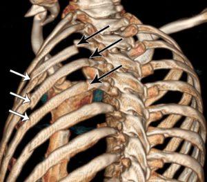 Переломанные ребра