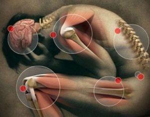 Боли в теле различной локализации