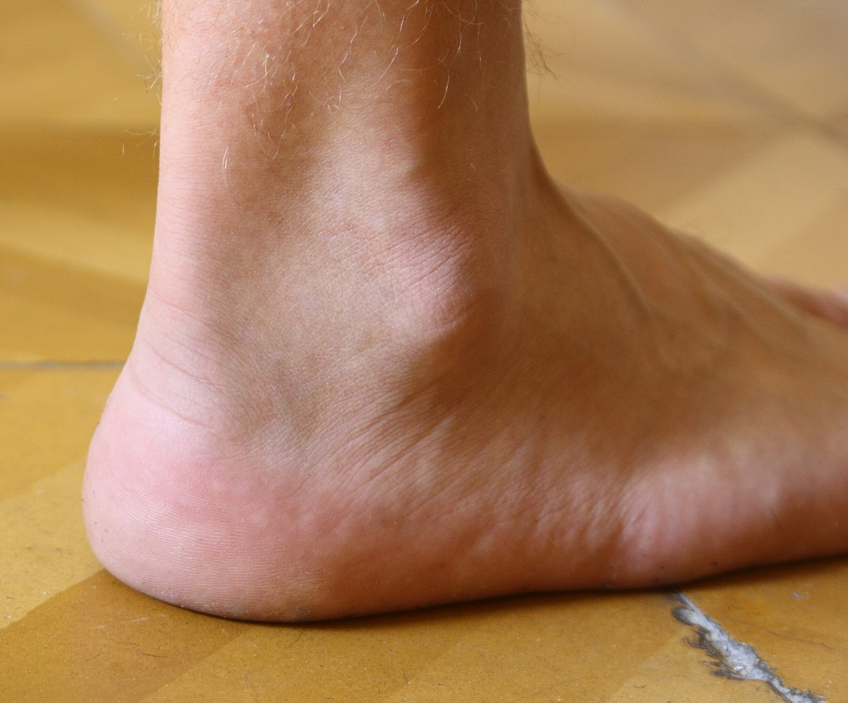 treating foot ankle leg and hand injuries