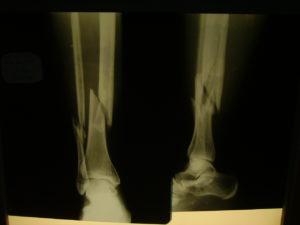 Рентгенограмма голени с переломом