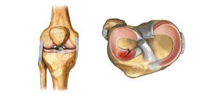 Разрыв мениска в коленном суставе