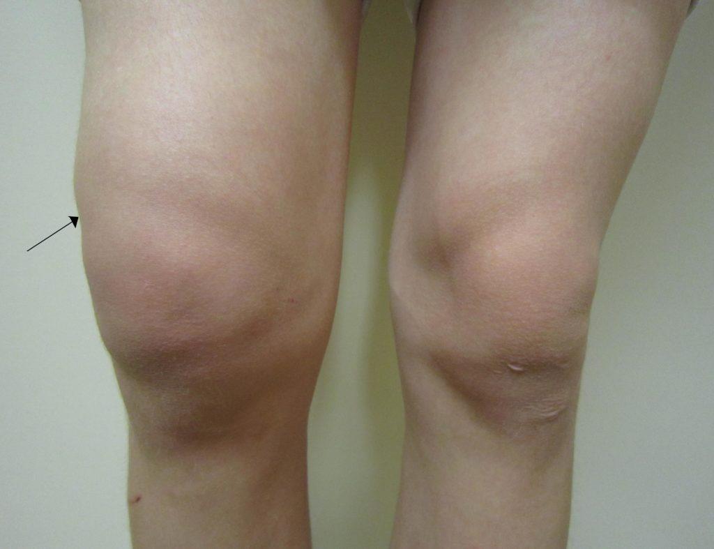 Опухло колено без ушиба и болит как лечить мазь