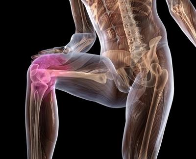 Изображение - Поражение связок коленного сустава Povrezhdenie-svyazok-kolena