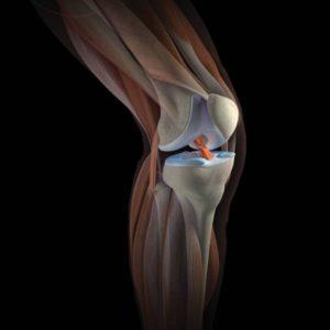 Изображение - Капсула сустава колена Kolennyj-sustav-300x300