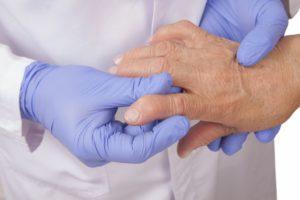 Изображение - Лечение воспаления суставов антибиотиками Obsledovanie-ruk-300x200