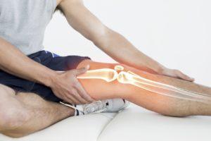 Изображение - Болят все кости и суставы причина Kosti-nogi-300x200