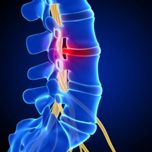 Методы лечения спины и позвоночника thumbnail