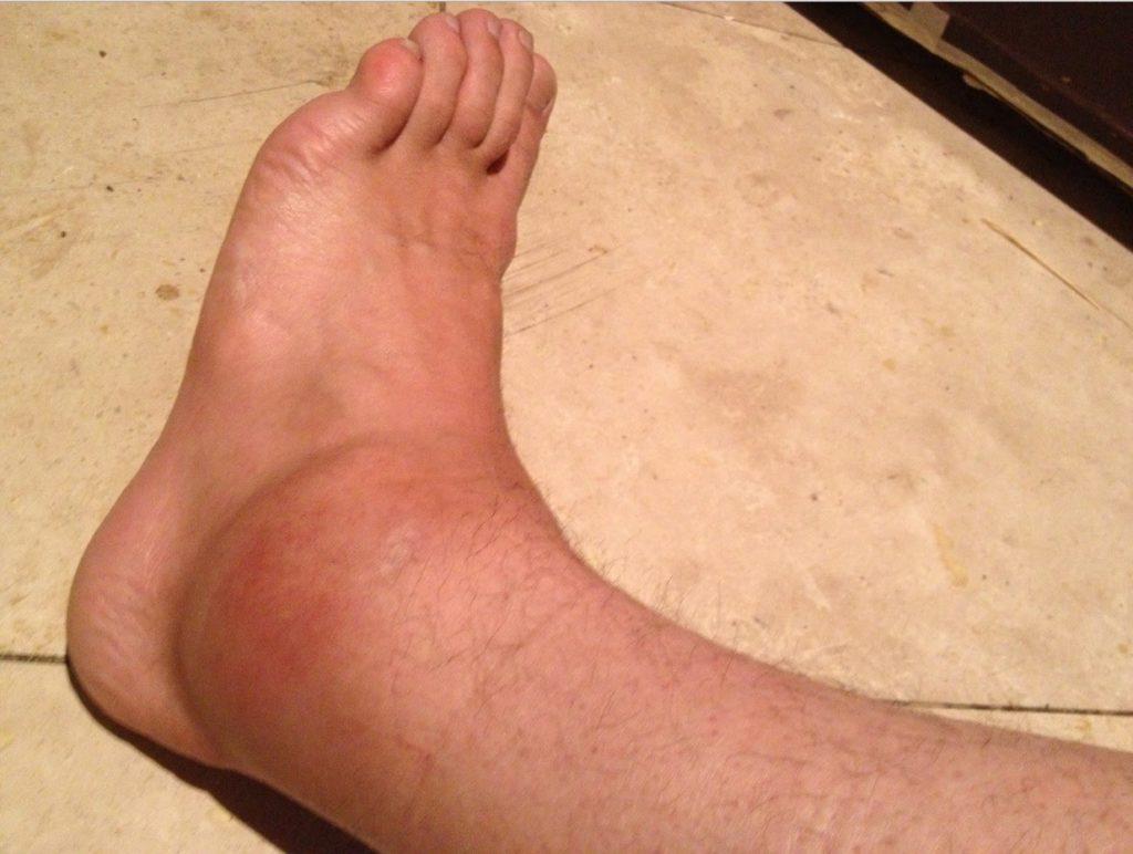 распухшая нога картинки
