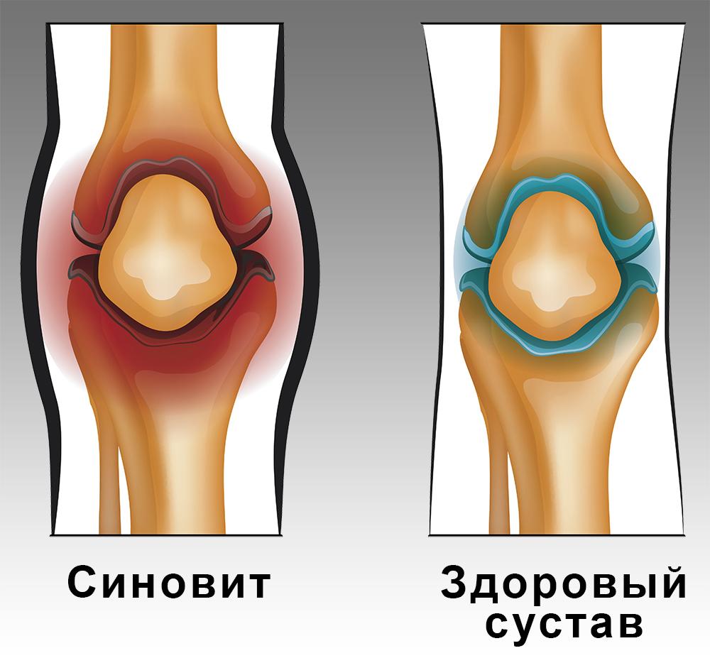 синовит коленного сустава на картинке